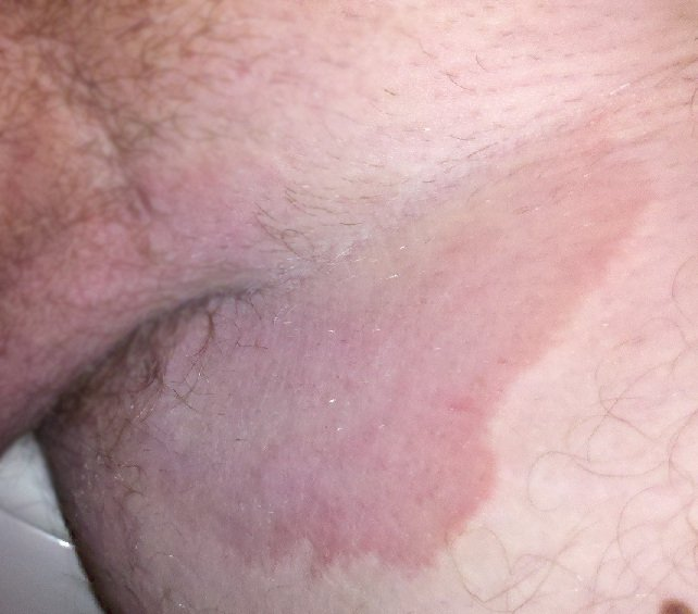 Discoloration Of The Groin Skin Due To Itching?
