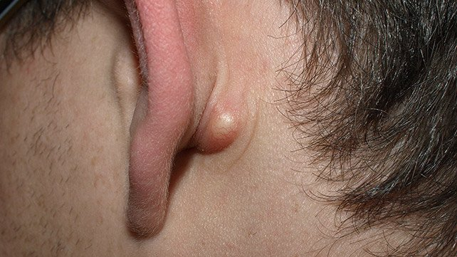 Lump In The Right Ear?