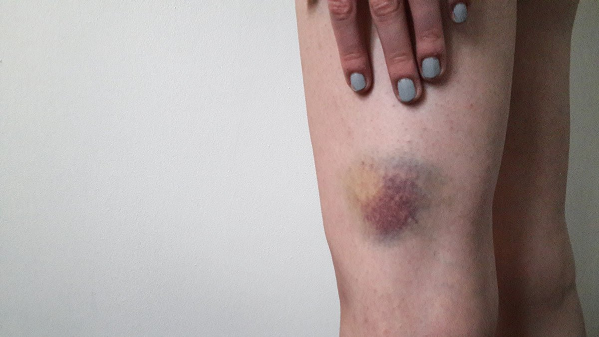 Frequent Bruising Accompanied By Hemoglobin Which Continues To Decrease In People With Cirrhosis?