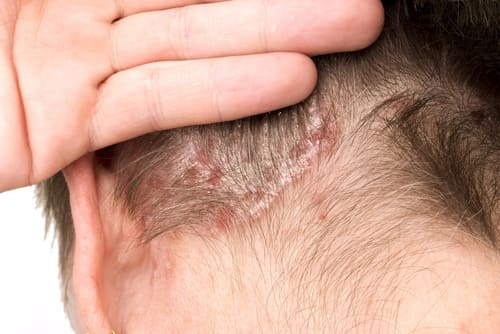 Can Sulfur Cure Fungus On The Scalp?