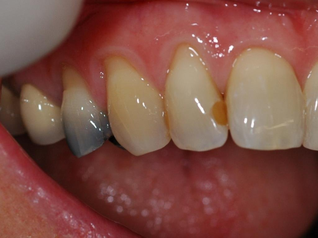Teeth Turn Yellow After Filling?