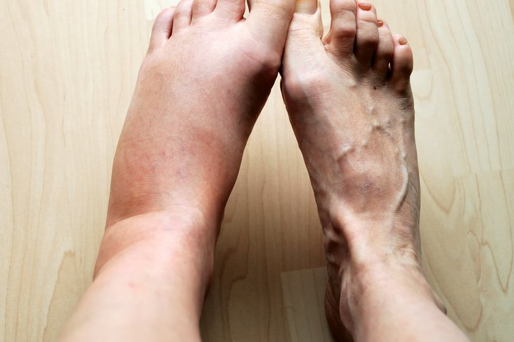 If You Feel Pain And Calves Under The Swelling And Red Spots Appear?