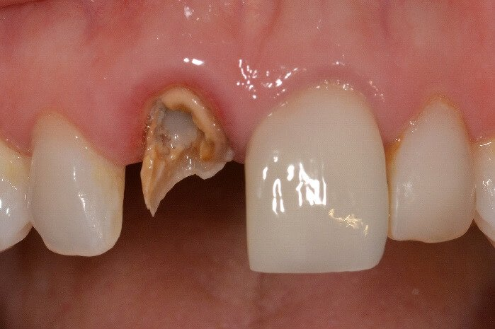 A Broken Front Tooth Is Better To Pull Or Crown?