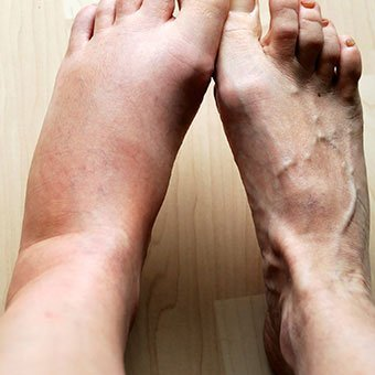 Spasms In The Spreading Leg Muscles Accompanied By Swollen Feet Make It Difficult To Walk?