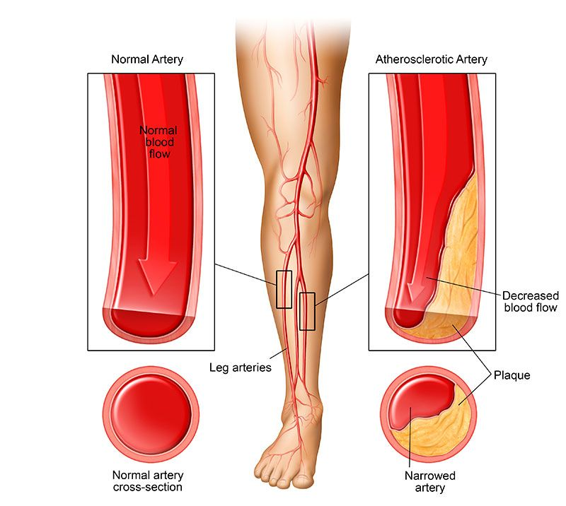 The Cause Of The Right Leg Is Sore At Night?