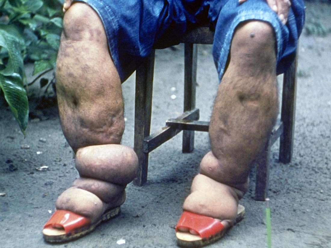 Consumption Of Preventative Medicine For Elephantiasis In Women Who Are Pregnant?