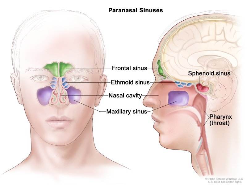Can Sinusitis Cause Malignant Cancer?