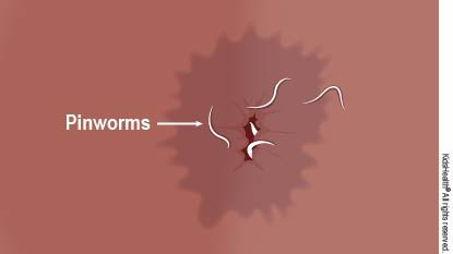 There Are Worms In The Child's Anus, Can I Take Deworming Again Before 6 Months?