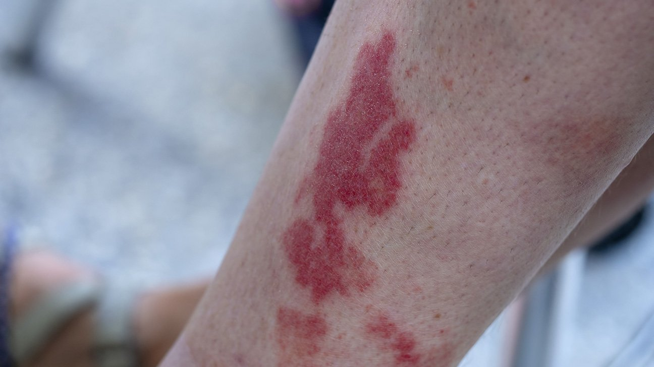 Red-black Rash Accompanied By Swelling Of The Ankles After Massage After A Motorbike Accident?