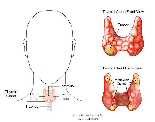 The Bones Feel Painful After 4 Years Of Thyroid Cancer Removal?