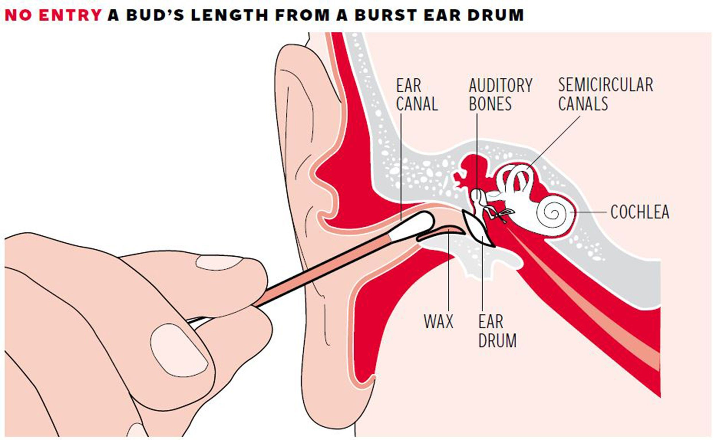 Overcoming Bleeding Ears After Being Hit?