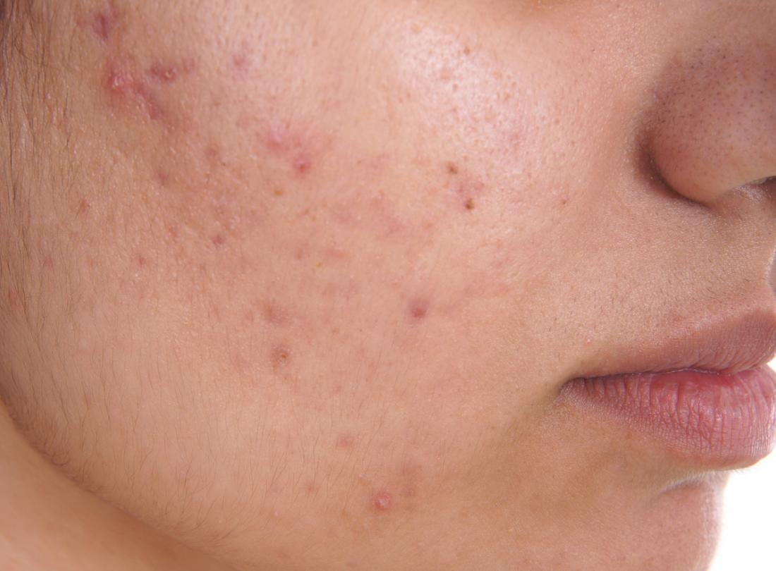 Use Of Water To Treat Acne?