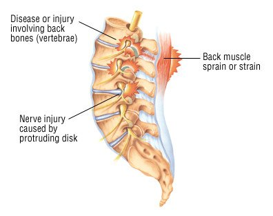 Why Does The Spine Feel Sore?