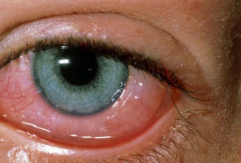 Swollen Eyes And Redness Due To Allergies?