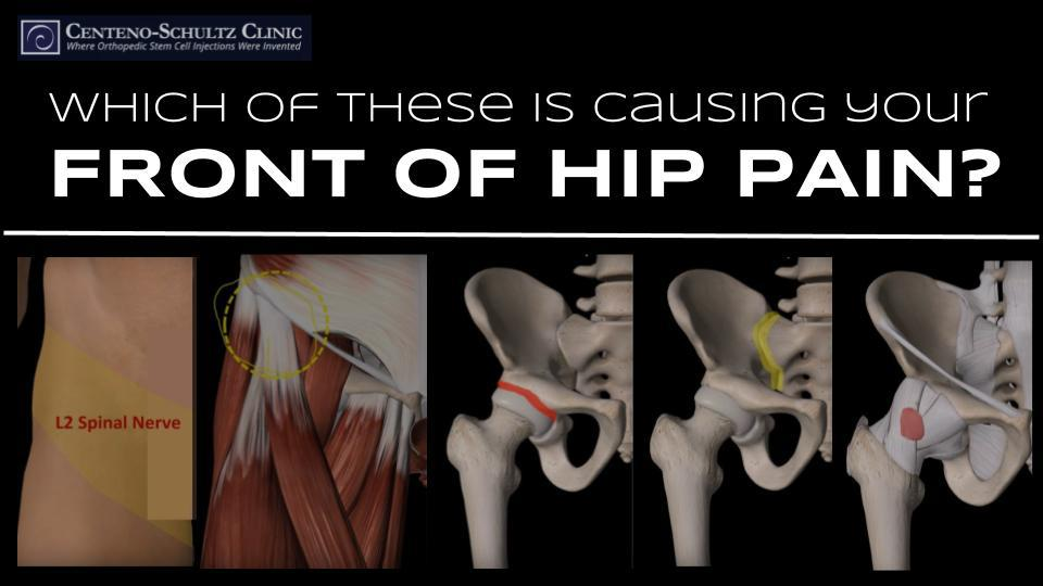 Pain In The Spine To The Hips?