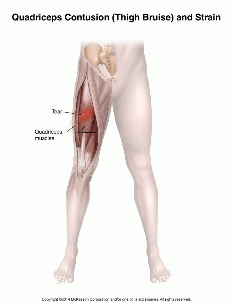 How Long Is The Recovery Period For The Right Thigh Fracture?