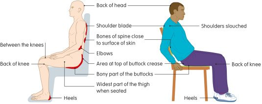 The Relationship Between Sitting Position And Bone Formation?