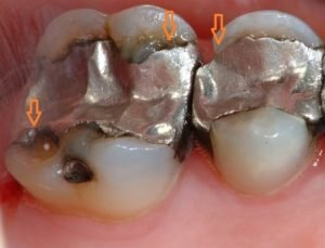 After Filling, The Teeth Often Hurt?