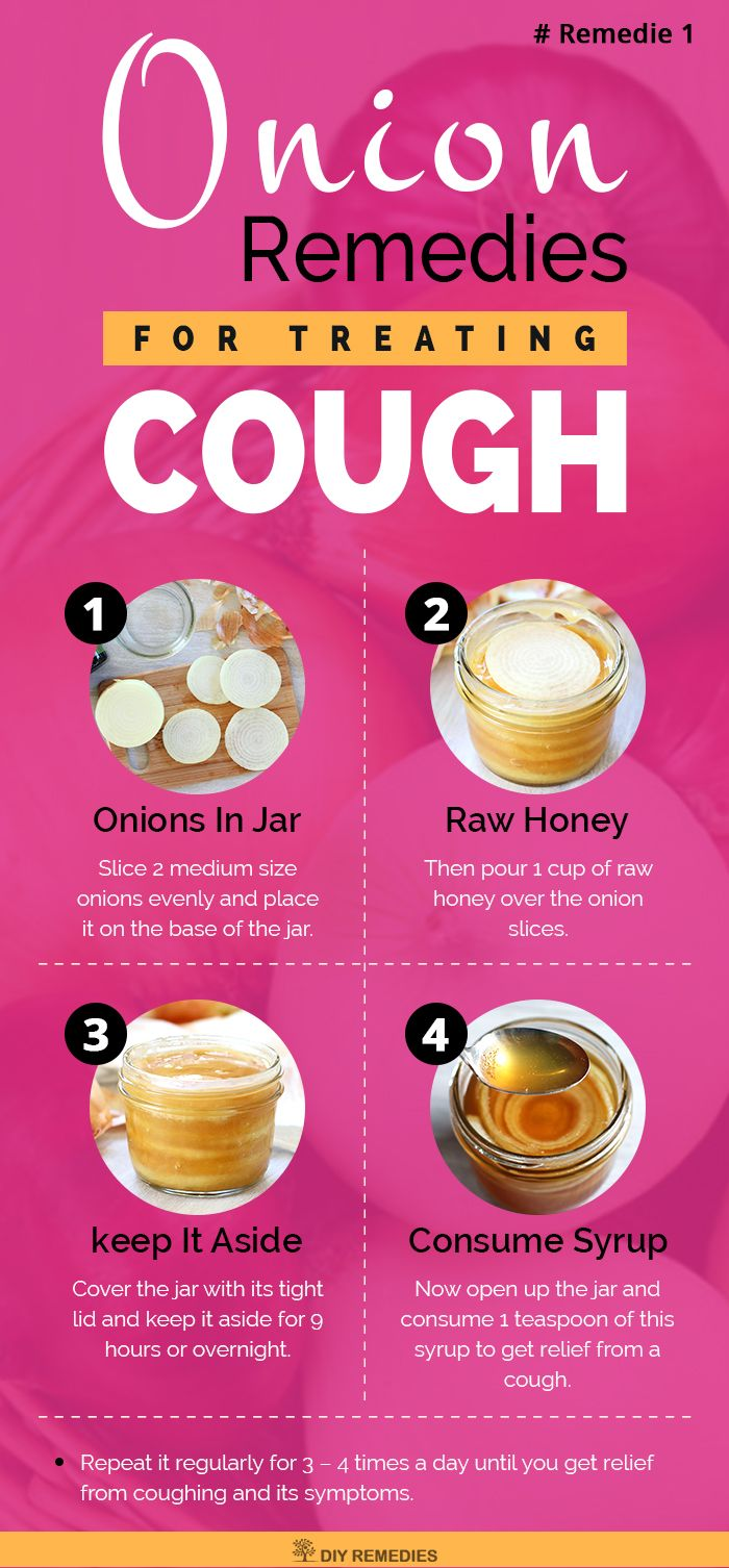 Treating Coughs With Onions?