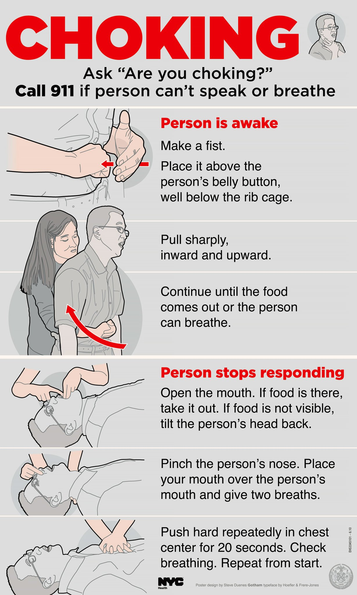 Complications Of Choking On Food?