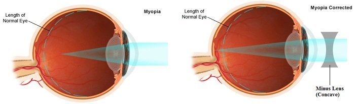 Can Contact Lenses Cure Eye Minus?