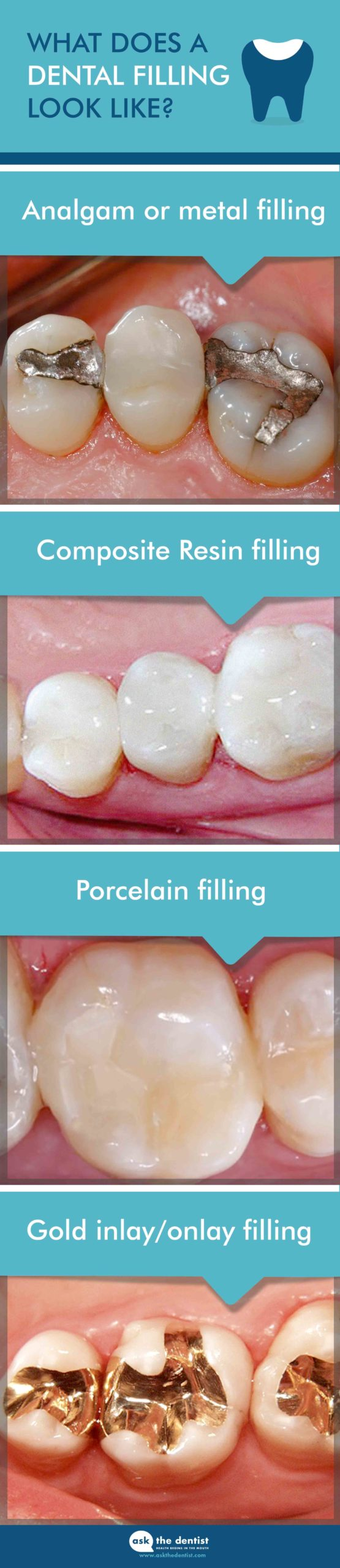 Pain After Filling Of The Upper Teeth?