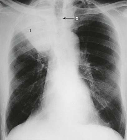 White Image To The Right Of The Lung?
