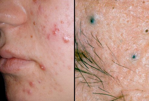 Blackheads-like Spots On The Neck Of The Penis (under The Tip Of The Penis)?
