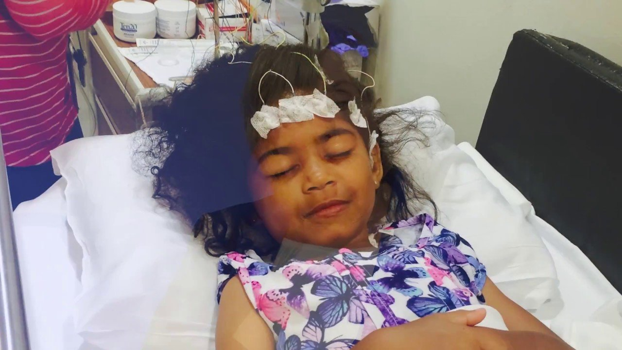 Overcoming Seizures Without Fever Until Unconsciousness?