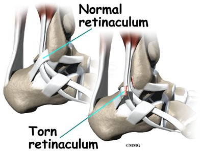 The Ankle Cannot Move After Tendon Surgery?