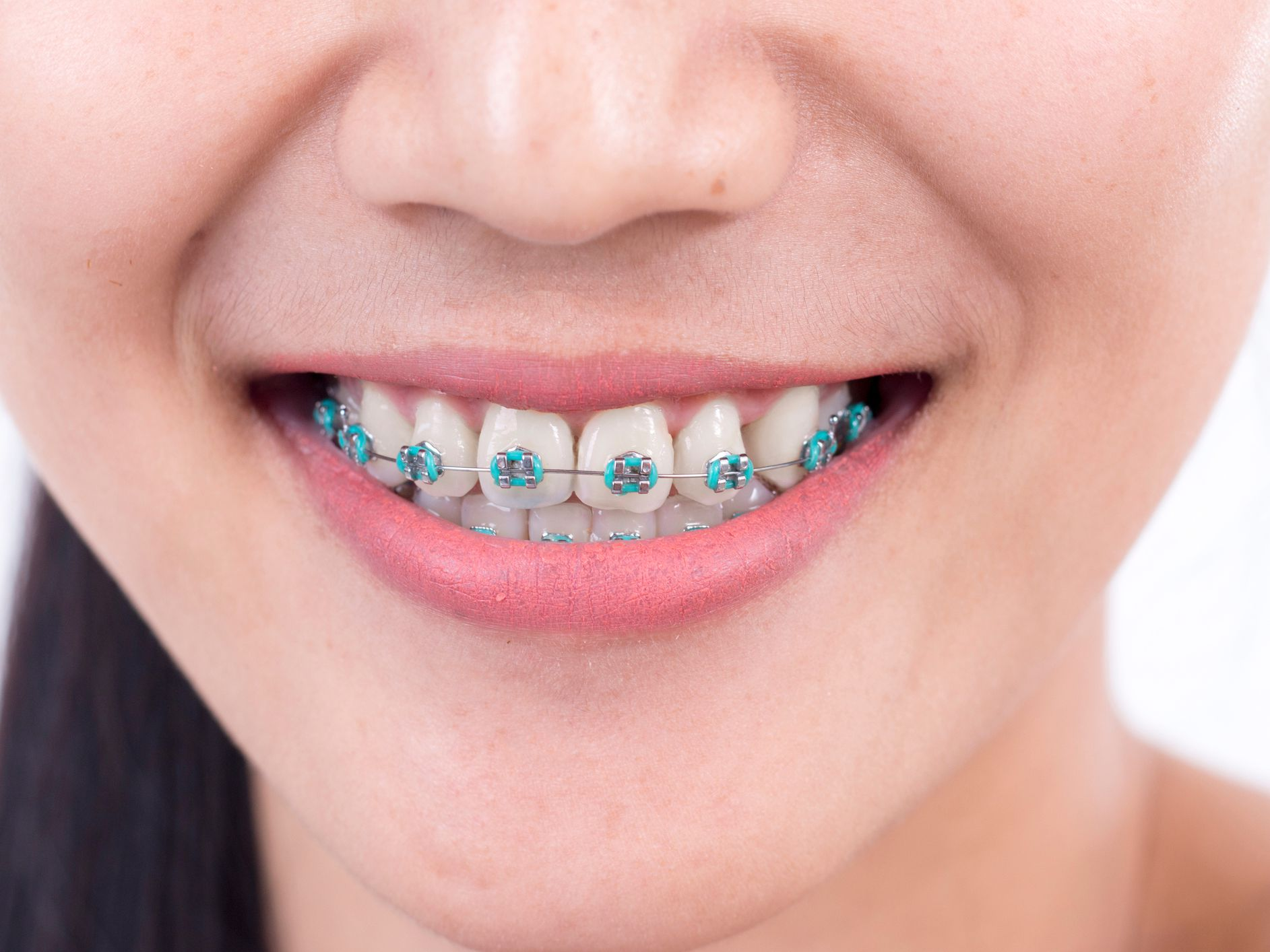 Requirements For The Installation Of Braces?