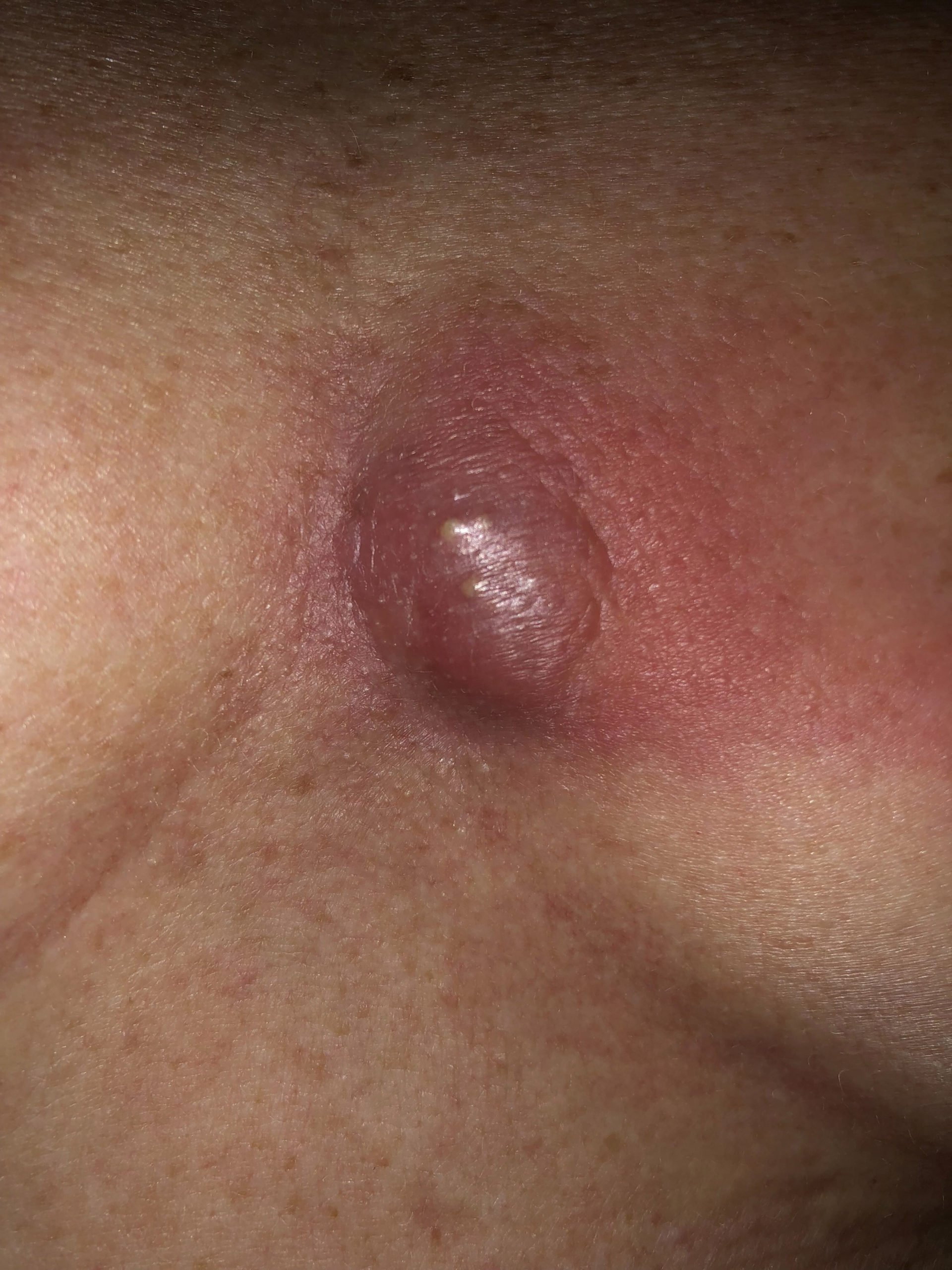 Red Lump Between The Breasts?