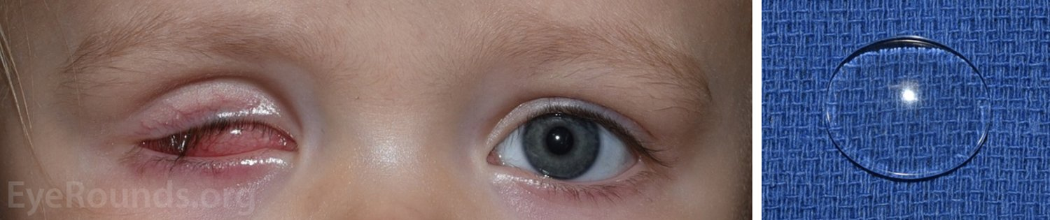 A Thick Clear Layer Appears On The Whites Of The Eyes?