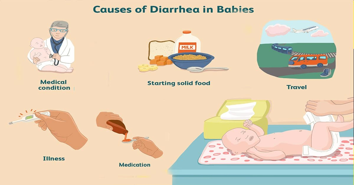 Causes Of Diarrhea In Babies Aged 4 Months?