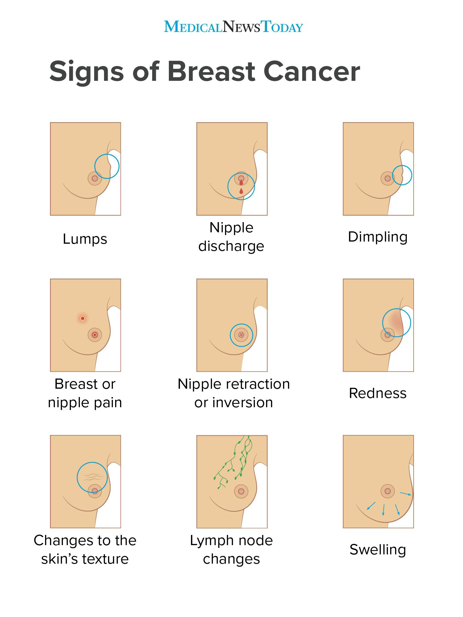 How To Deal With Breast Pain With A History Of Breast Abscess Surgery?
