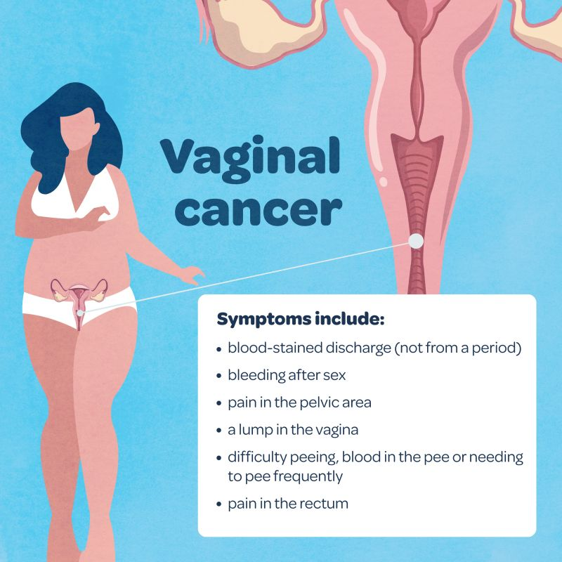 The Cause Of Abnormal Vaginal Discharge And Lumps On The Cervix, But The Pap Smear Results Are Clean?