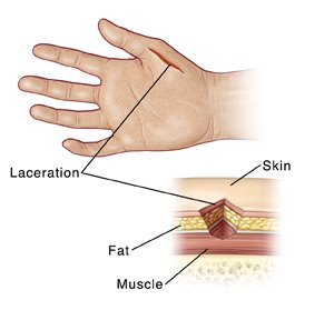 The Nerve Injury To The Thumb Doesn't Heal, It's Painful And Swollen?