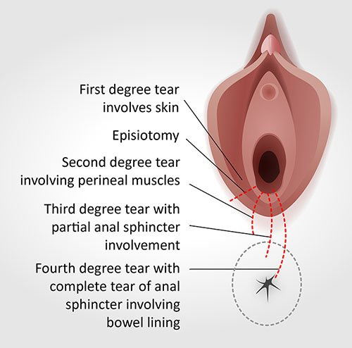 Tears Of The Birth Canal During Childbirth?