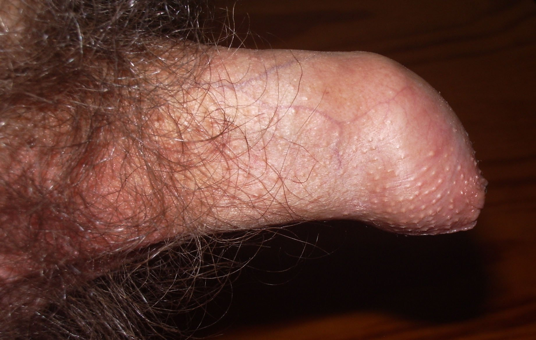 Causes Of The Penis Skin That Cannot Close After An Erection?