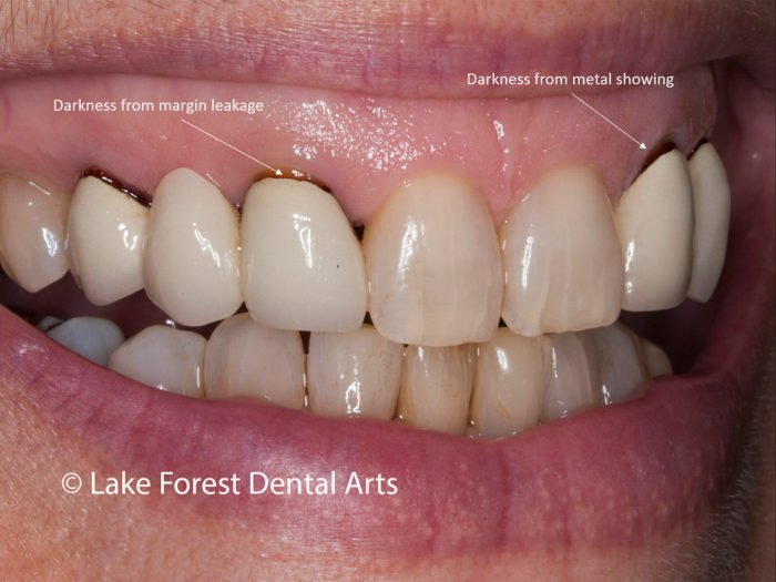 The Cause Of The Color Of The Tooth Crown Turns Black?