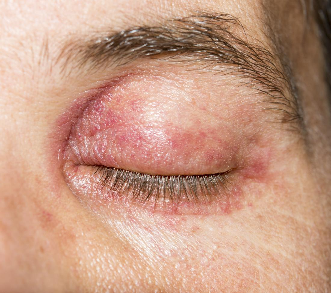 Swollen Red And Itchy Eyelids After Removal Of Additional False Lashes?