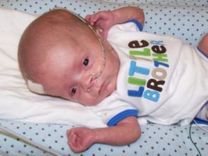 How To Deal With Hydrocephalus In A 9 Month Old Baby?