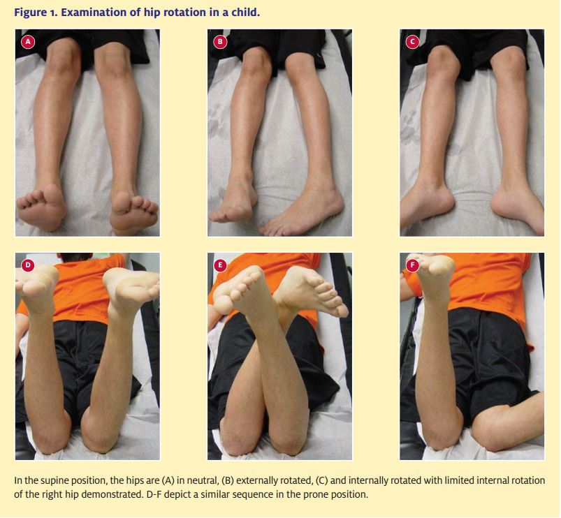 The Association Of Stomach Disease With Limp Legs?