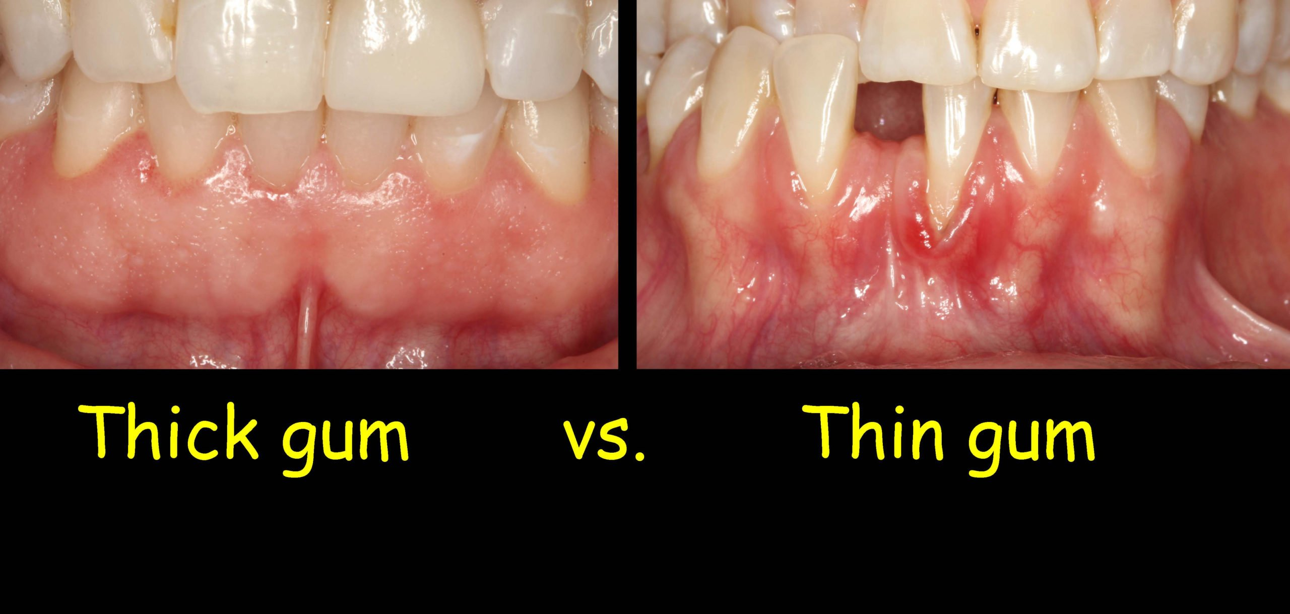 The Teeth Look Long And The Gums Look Thin. What Is Gum Inflammation?