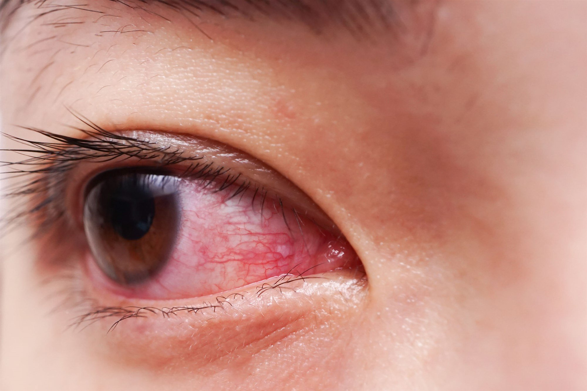 Red Eyes Water And Discharge After Using Contact Lenses?