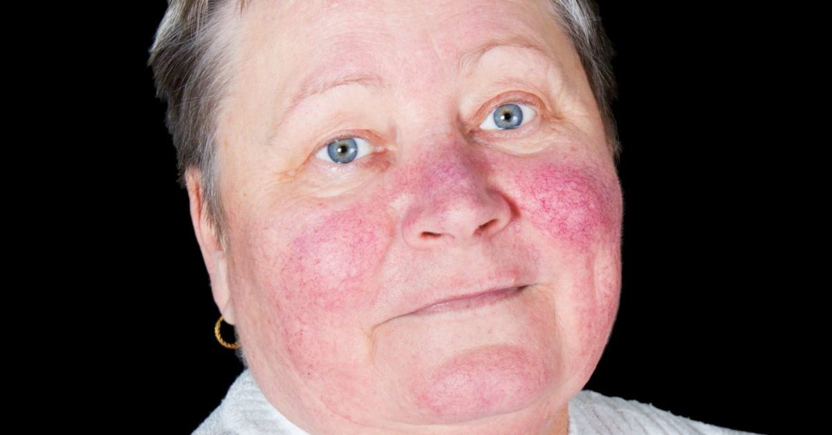 Red Facial Skin When Exposed To Sunlight When Using Facial Treatments?