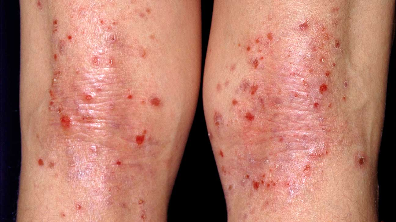 Often Out Red Spots On The Legs?