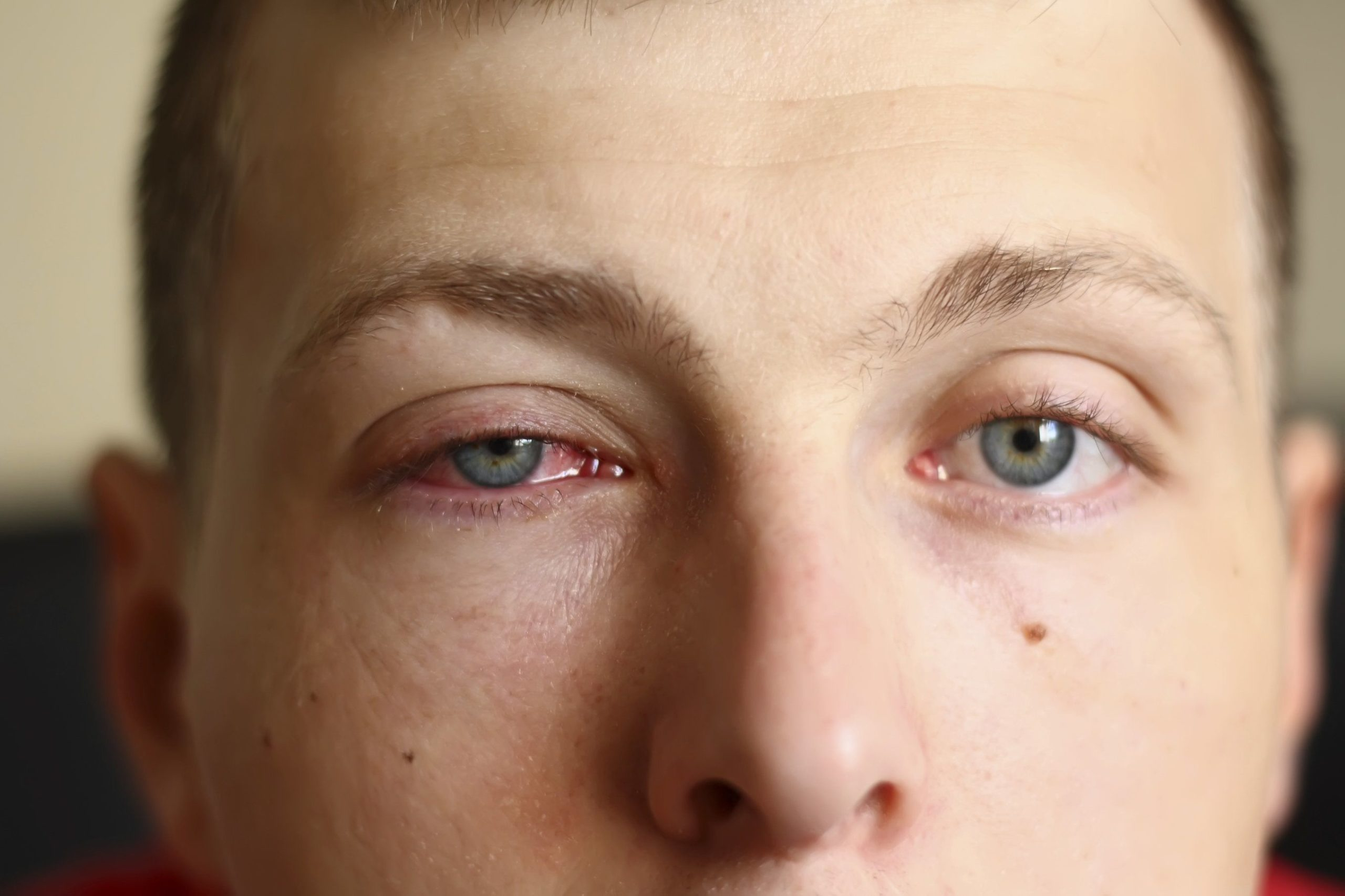 Painful Swelling Of The Cheek Under The Eyelid?