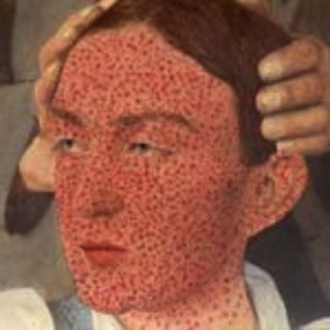 The Left Eye Is Red And There Is A Smallpox-like Lump In The Eye?