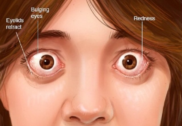 Causes Eye Pain When Moved?